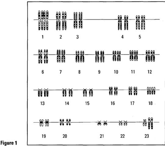 Laboratory Activity #18 - Making Karyotypes